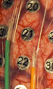 Brain-electrodes-w