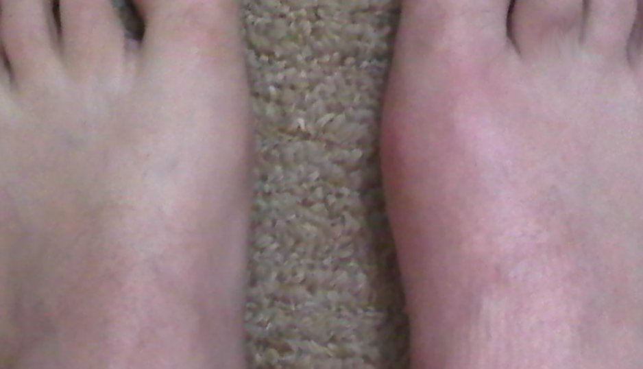 The adventures of uric acid and gout foot - Amal Graafstra