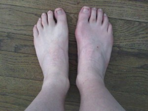 Physical changes to the foot